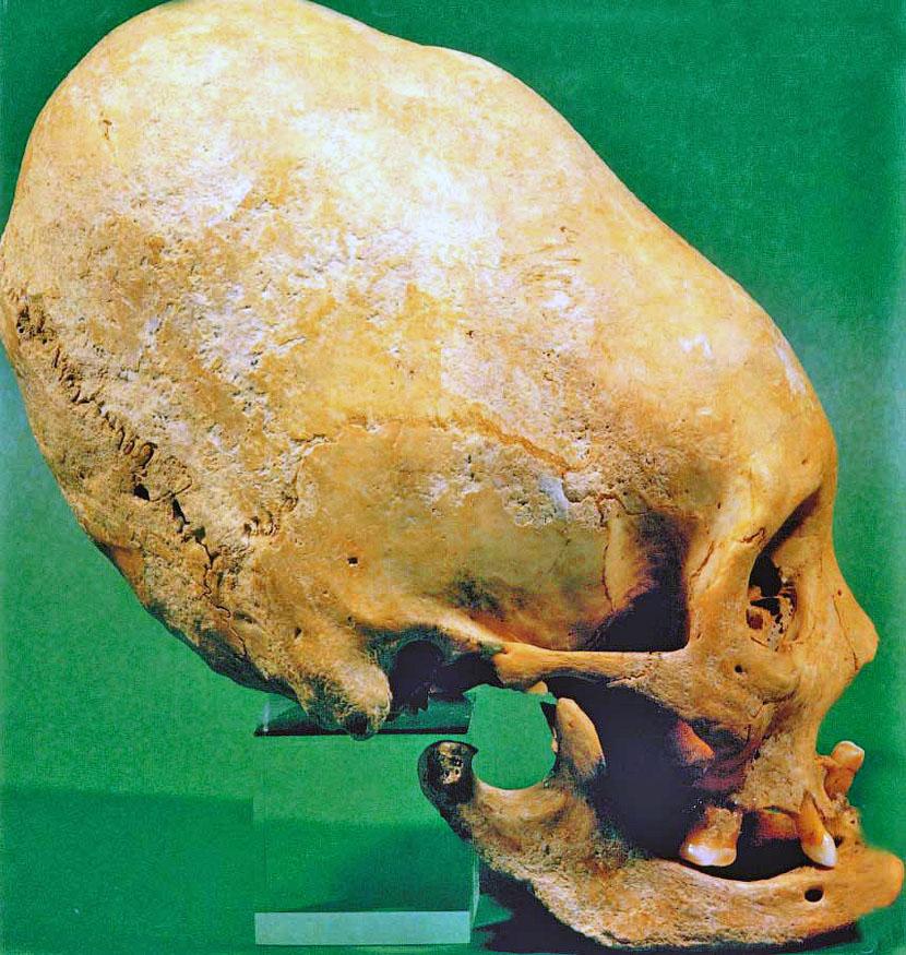 Загадочные черепа