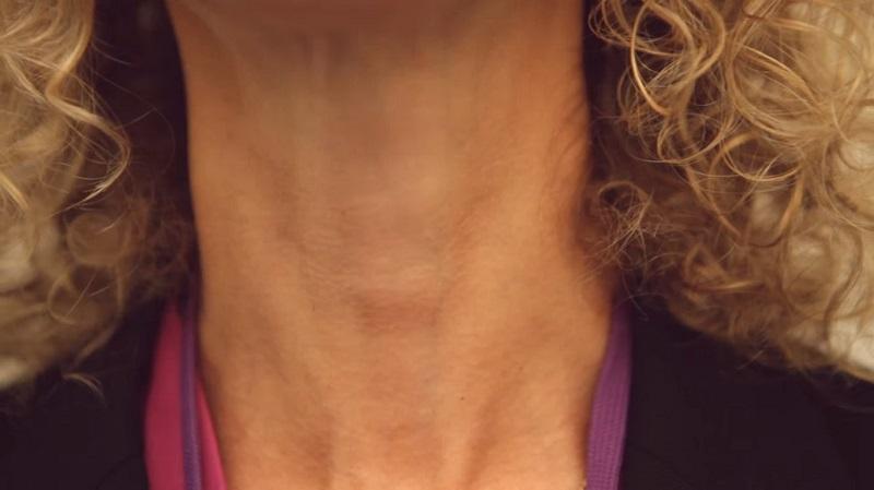 Как определить проблемы со щитовидкой самостоятельно