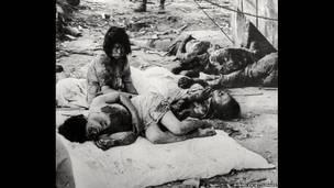 Раненые жители Хиросимы, 1945.