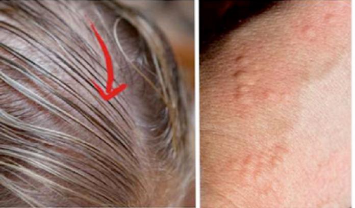 8 признаков, которые указывают на проблему со щитовидной железой!