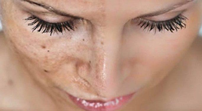 8 рецептов быстрого устранения пигментных пятен на коже