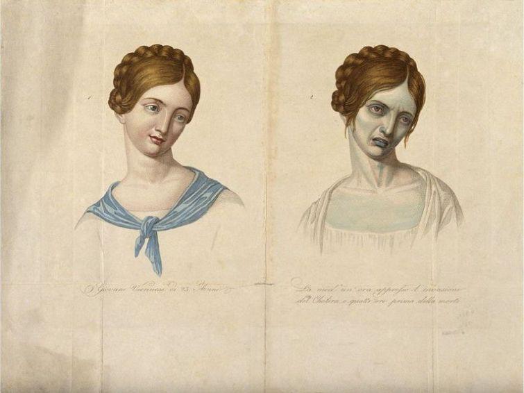 Наглядная демонстрация изменений, вызванных холерой, 1817 год знаменитости, история, редкие кадры, фото