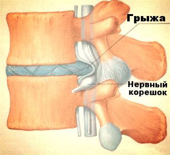 боль в ногах при грыже поясничного отдела