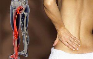 Народные методы лечения невралгии седальщного нерва