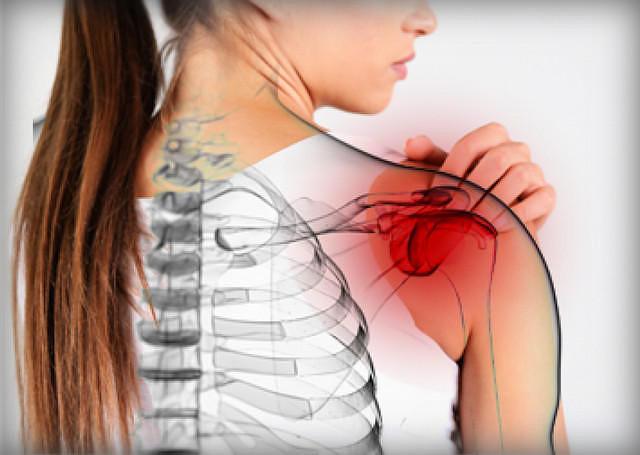 Естественное лечение «замороженного плеча» и исцеление в течение нескольких дней!