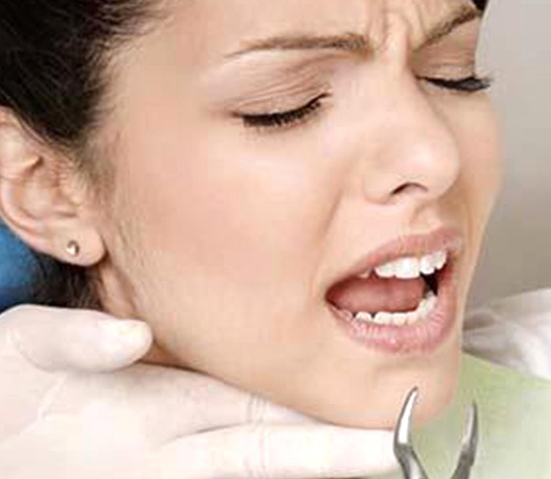 Осужден новозеландец, выдиравший зубы плоскогубцами на память во время секса