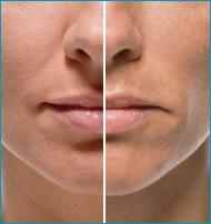 Что такое лицевая липоатрофия?