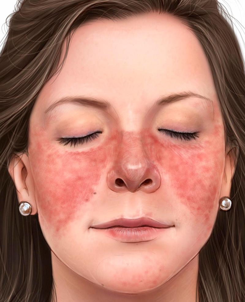Сигналы кожи, предупреждающие о серьезных заболеваниях