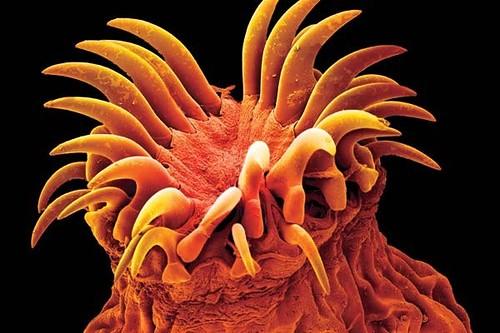 очищение от паразитов чесноком и кефиром отзывы