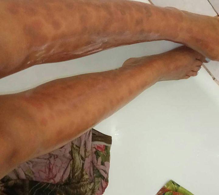 это наиболее сожгли ноги в салоне красоты гиды Беларуси