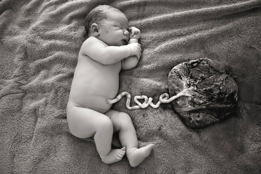 Mom Celebrates Birth With A Pic Of Her Newborn's Umbilical Cord Spelling Out 'LOVE'