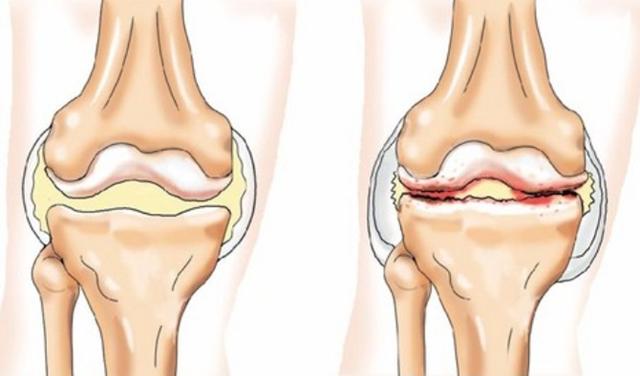 Лечение остеоартроза народными методами и средствами