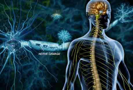 Как жить человеку с рассеянным склерозом