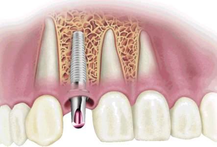 Зубные импланты: краткий, но необходимый ликбез