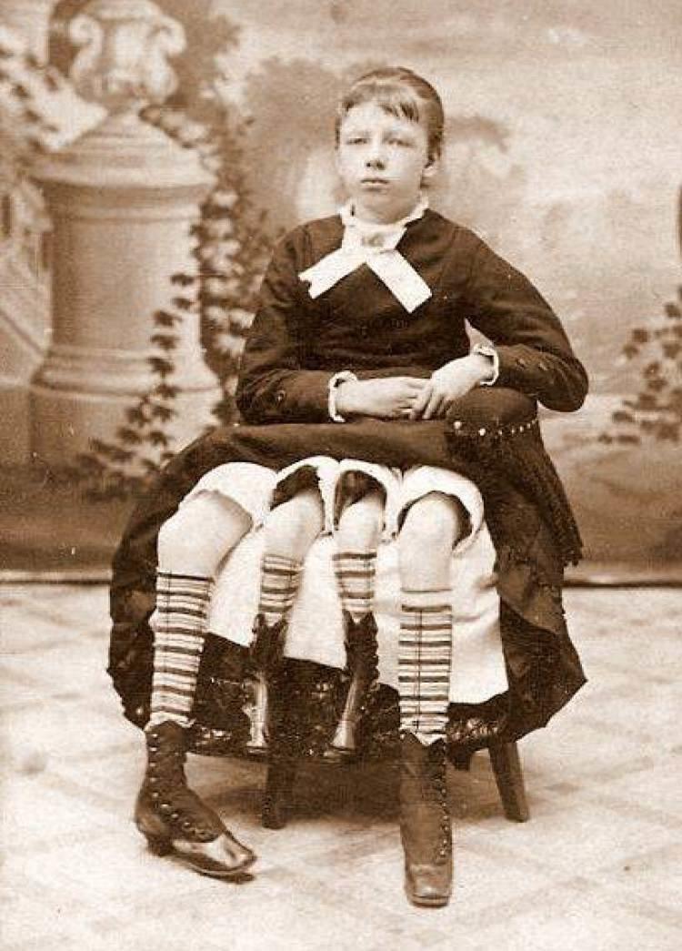 Четырехногая девушка. Все ее ноги прекрасно функционировали. интересное, прошлое, фото, цирк