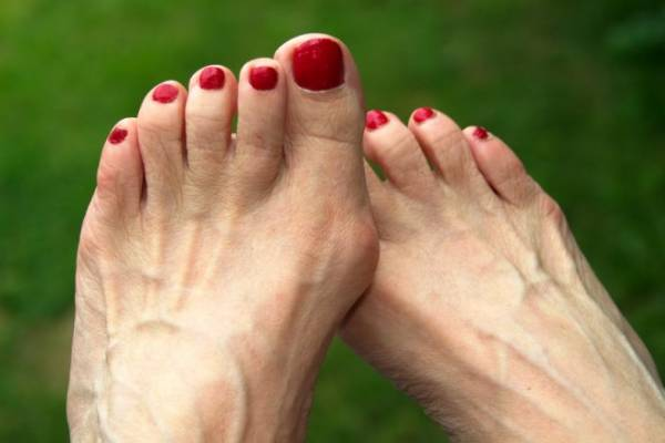 Как избавиться от «шишки» на большом пальце стопы народными средствами