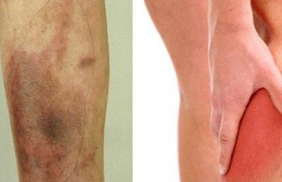 9 проблем со здоровьем ног, которые не стоит игнорировать