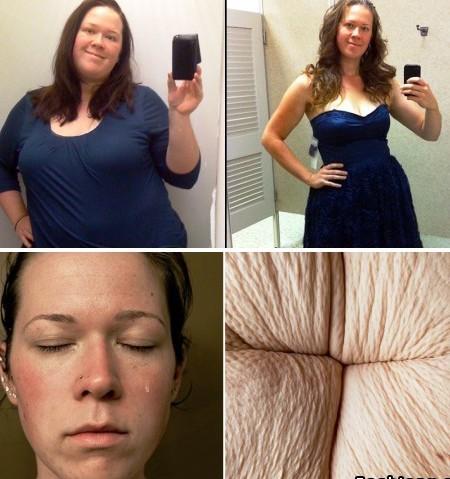 То, что скрыто: девушка показала нелицеприятную сторону экстремального похудения