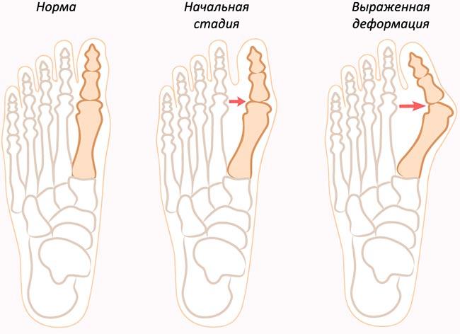 стадии вальгусной деформации стопы (шишки на пальце ноги)
