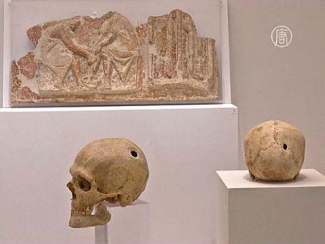 Древние греки сверлили черепа и лечили травами