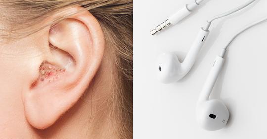 Предупреждения врачей о том, что происходит с ушами, когда вы слишком долго носите наушники