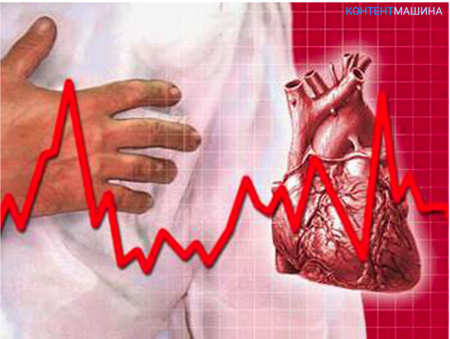 Сердечная аритмия - что делать