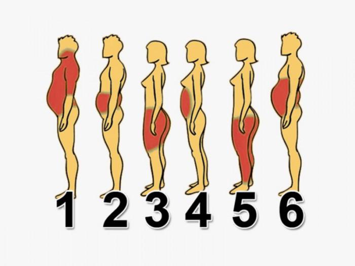 6 типов ожирения, и как спра…