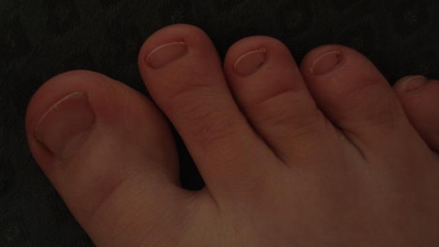 У меня очень маленькие ногти на ногах