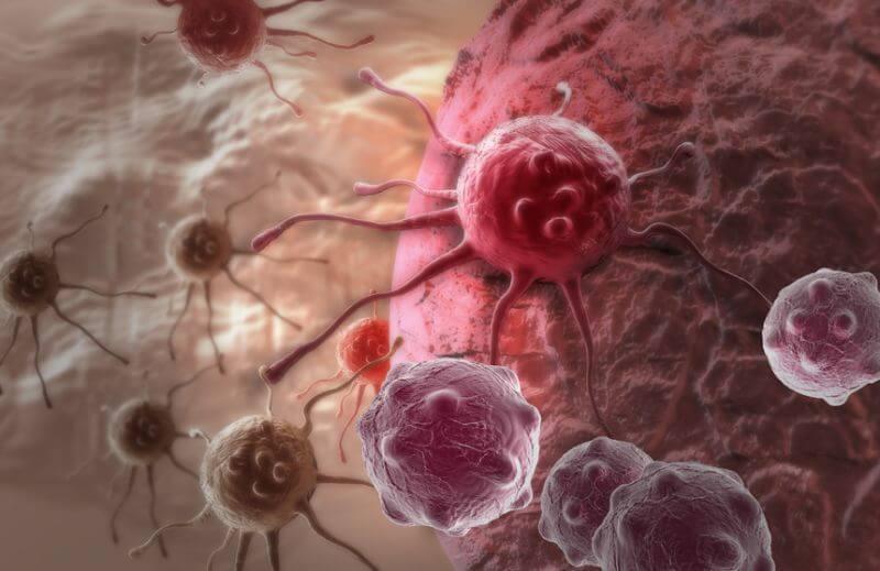 Афера в индустрии лечения рака: на химиотерапии по ложным диагнозам наживают миллиарды долларов