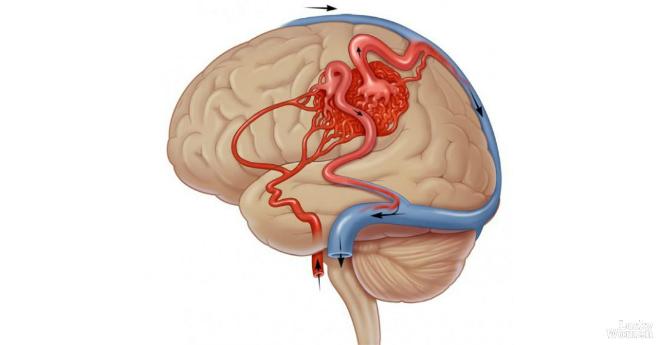 Как улучшить кровообращение мозга? 5 полезных советов!