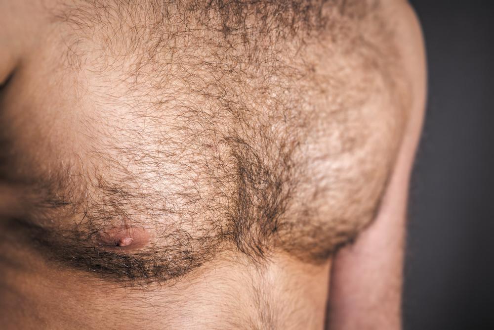 Почему растут волосы на грудине у девушки