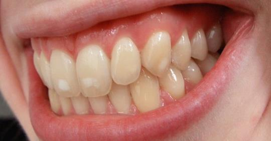 Одиннадцать советов по лечению белых пятен на зубах
