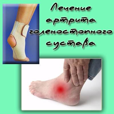 остеоартроз голеностопного сустава у какого врача лечить