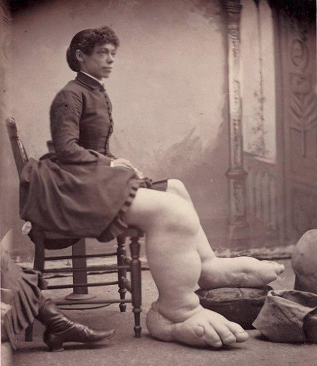 Женщина с большими ногами. «Цирк уродов»: Страшное зрелище (фото)