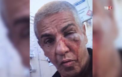 Полиция решает вопрос о возбуждении уголовного дела по факту избиения Сами Насери