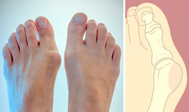 как лечить шишку на пальце ноги