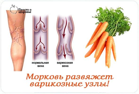 Морковь развяжет варикозные узлы!