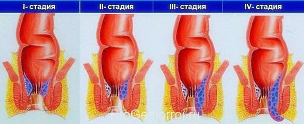 Геморрой имеет 4 стадии развития. Своевременно начатое лечение – гарантия выздоровления.