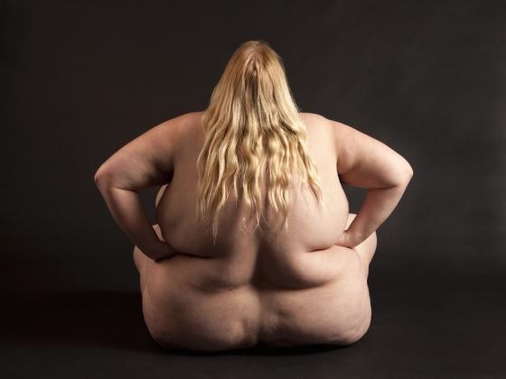 Низкокалорийное питание может стать причиной ожирения