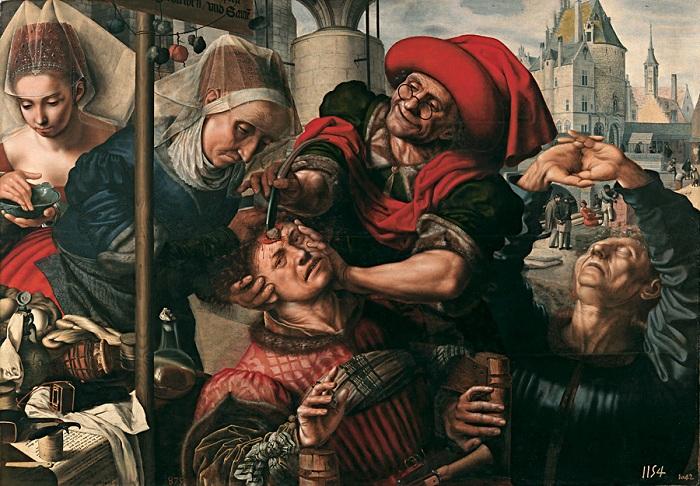 «Камни безумия»: шокирующие примеры средневекового врачевательства