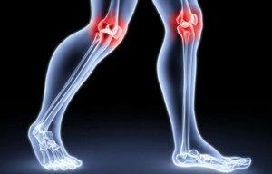Рецепты народной медицины для снятия болей при артритах