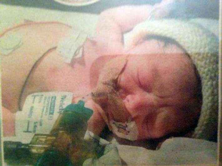 Девочка, которая родилась без крови, успешно живёт до сих пор