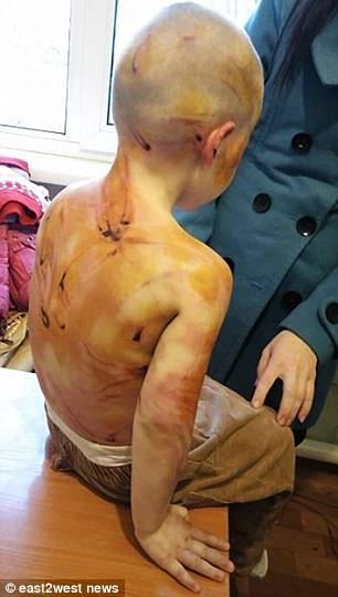 Красноярск. Он жестоко избил 4-х летнюю дочь за то, что она не смогла сосчитать до 5! Фото+Видео