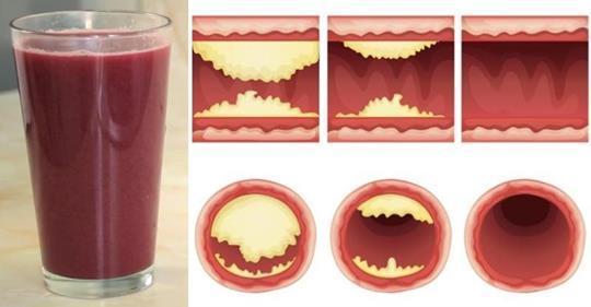 Этот вкусный сок расширяет артерии и предотвращает сердечные заболевания!