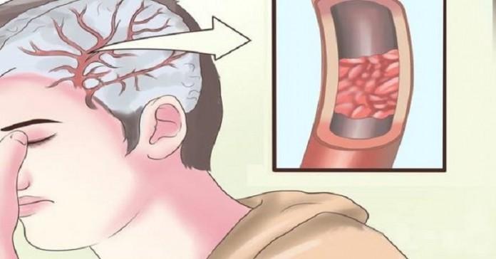 10 суперпродуктов для эффективного очищения артерий и профилактики инфаркта
