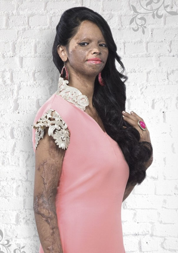 Acid Attack Survivor Becomes Face Of  Fashion Brand In India