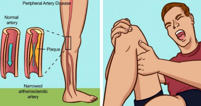 Вот 7 предупреждающих знаков, которые указывают на то, что у вас заблокированные артерии