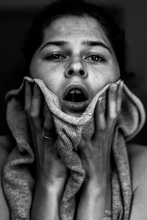Автопортреты из психбольницы: шокирующие фото девушки, выжившей после попытки суицида