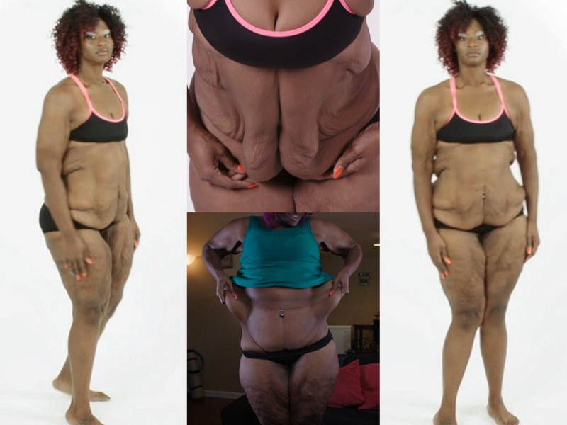 Как похудеть при весе 140 кг