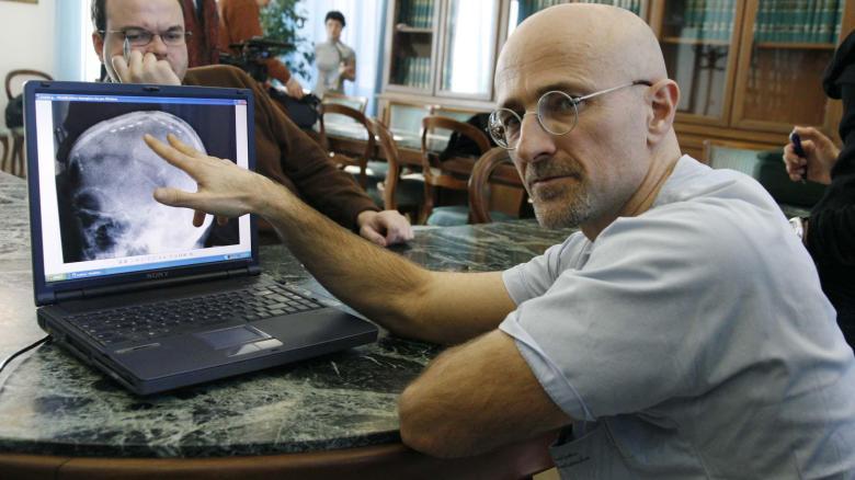 Sergio Canavero,  нейрохирург из Италии
